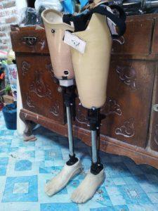 pasien kaki palsu kalimantan