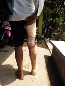 kaki palsu untuk pasien amputasi