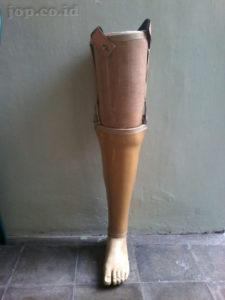 pemesan kaki palsu di yogyakarta
