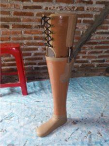 pasien kaki palsu diabetes