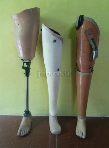 kaki palsu lokal indonesia