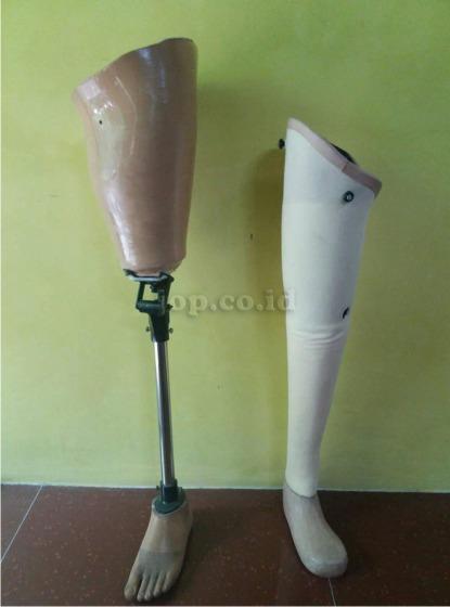 pengguna kaki palsu di Banyuwangi