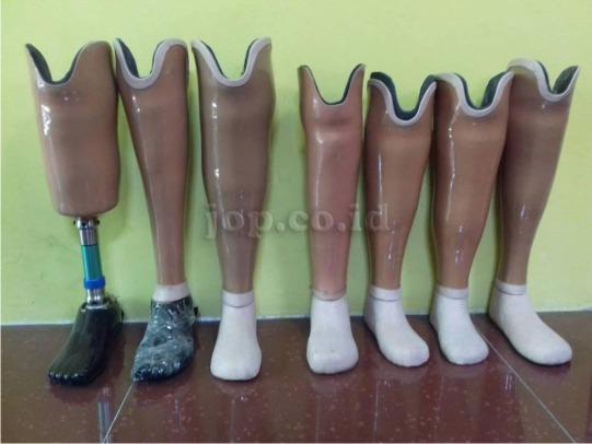 pengrajin kaki palsu di jakarta