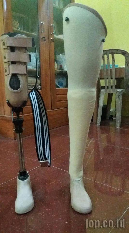 penjual kaki palsu komponen lokal