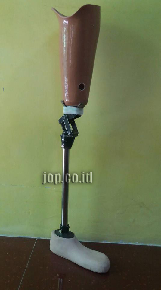 kaki palsu di lamongan