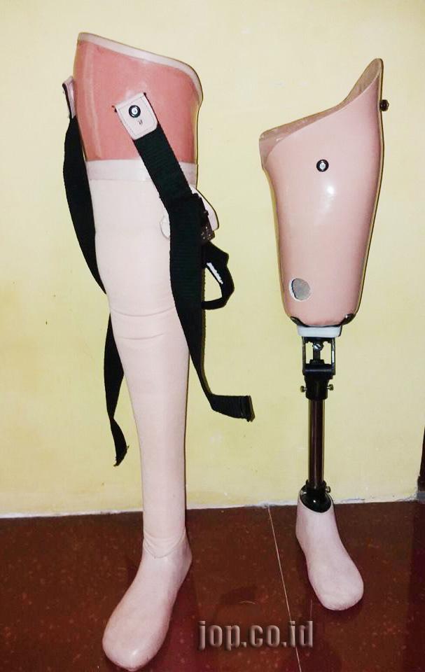 pesanan kaki palsu atas lutut